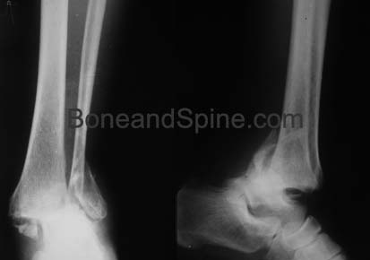 Xrays of Bimalleaolar Fracture With Ankle Dislocation