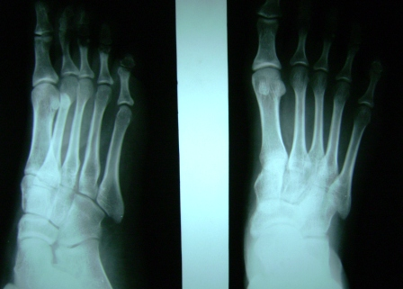 Foot Xray showing anteroposterior and lateral views