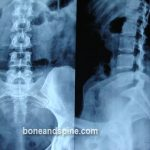 Lumbar Spondylosis- Xray Showing Straightening of Spine