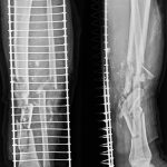 Radiographs of Fracture Tibia and Fibula