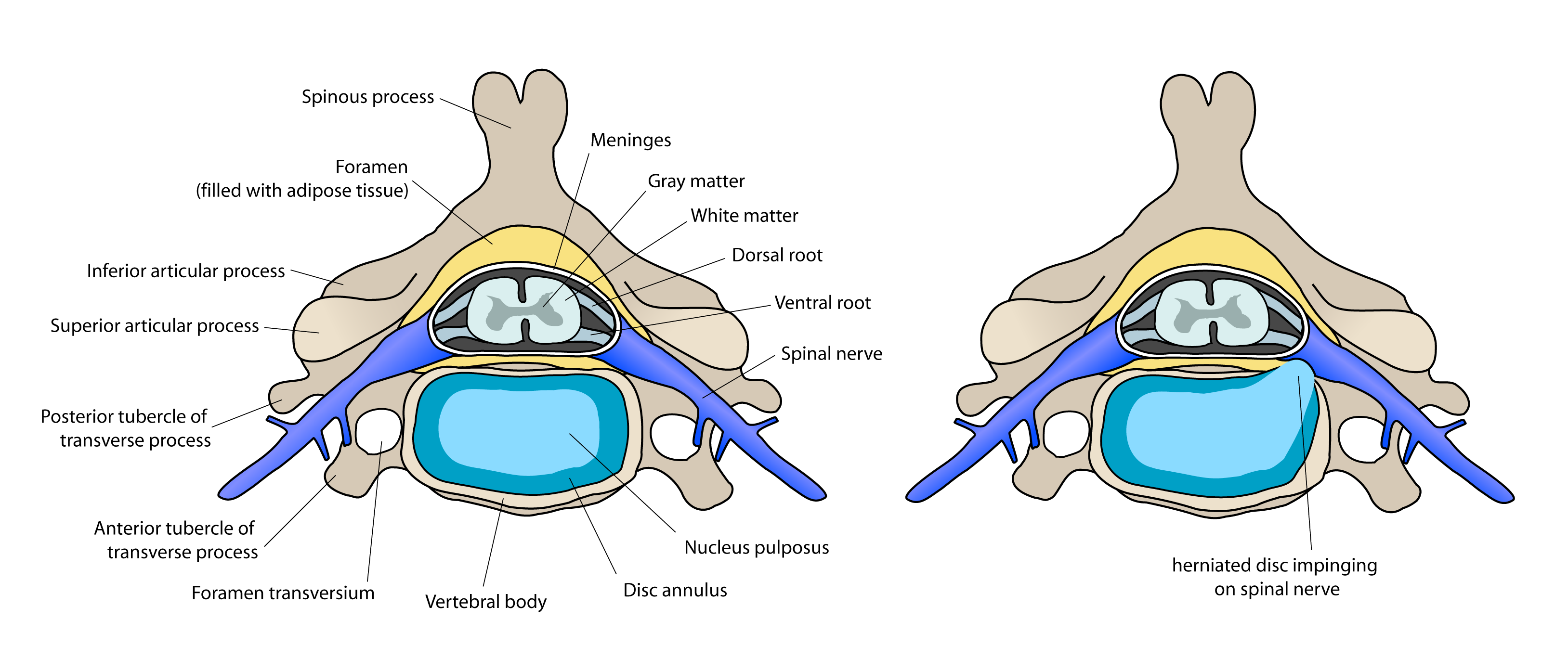 disc-herniation-anatomy