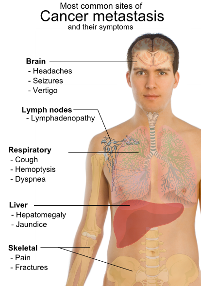 Breast cancer in lung secondary