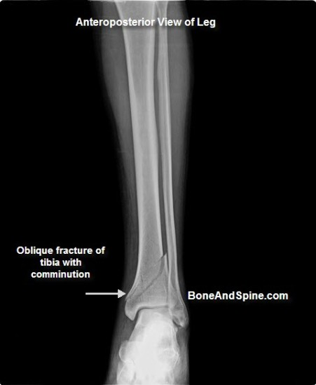 oblique-fracture-lower-tibia