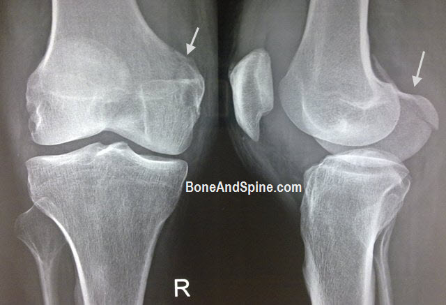 lateral condyle fracture - photo #21