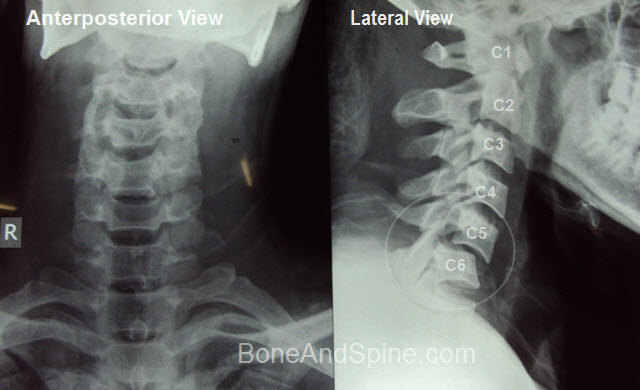 c5-C6 dislocation of cervical vertebra