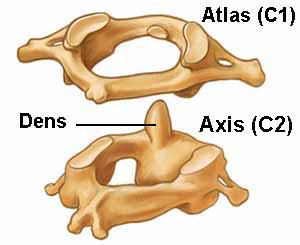 Atlas and Axis Vertebrae