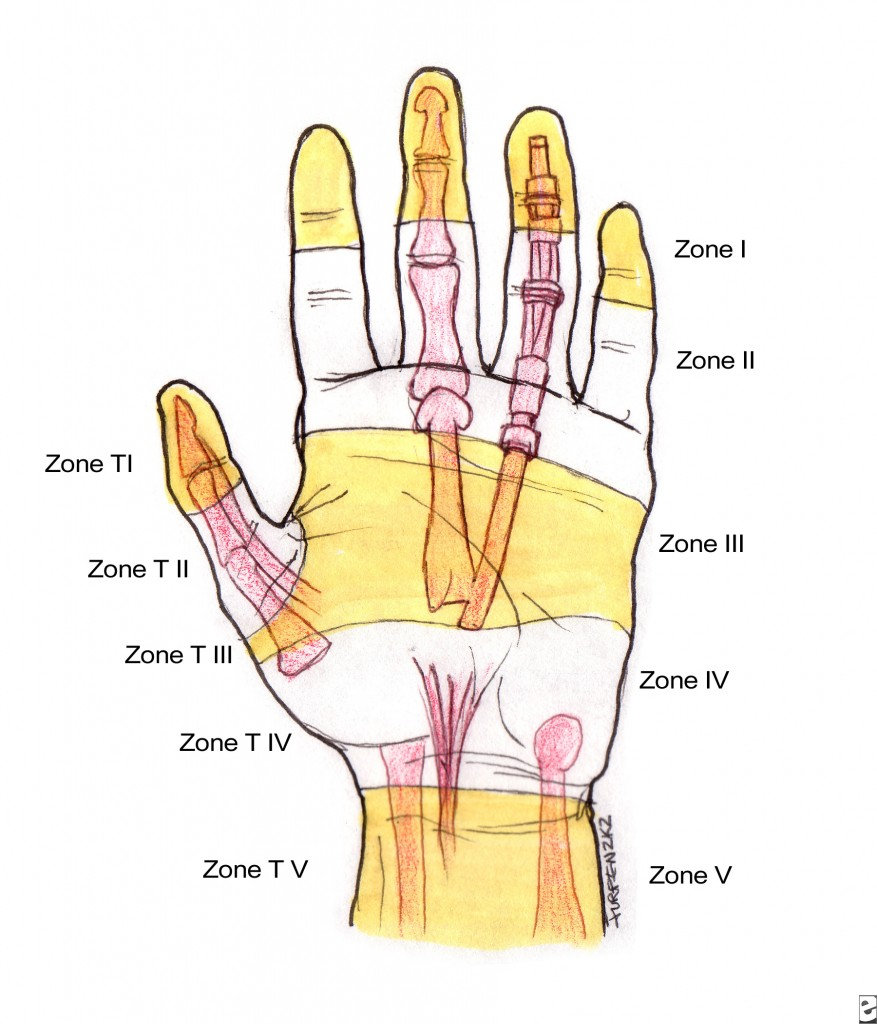 Tendon Zones of Flexor Aspect of Hand With Thumb Zones