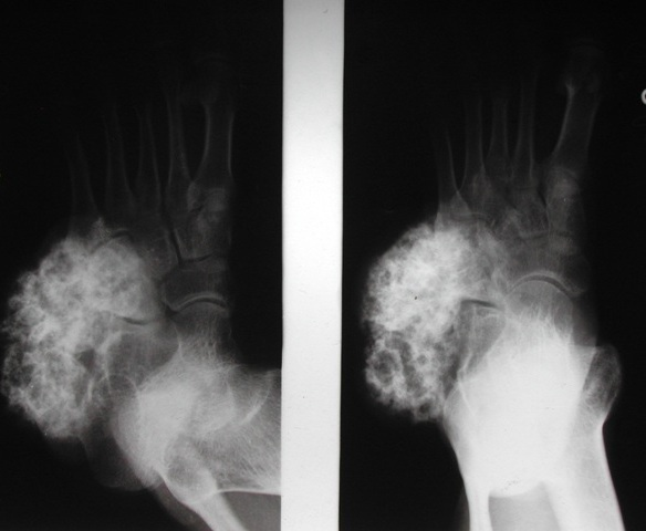 AP and Oblique Views of Foot Showing A Bony Lesion Probably From Cuboid