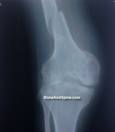 Fracture Of Femur In Distal Third Region