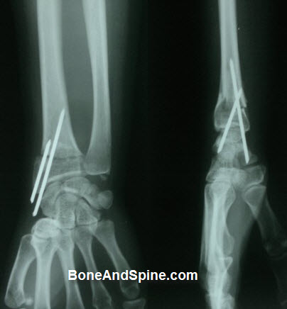 Fracture Distal Radius Treated By Closed Reduction and Kwire Insertion