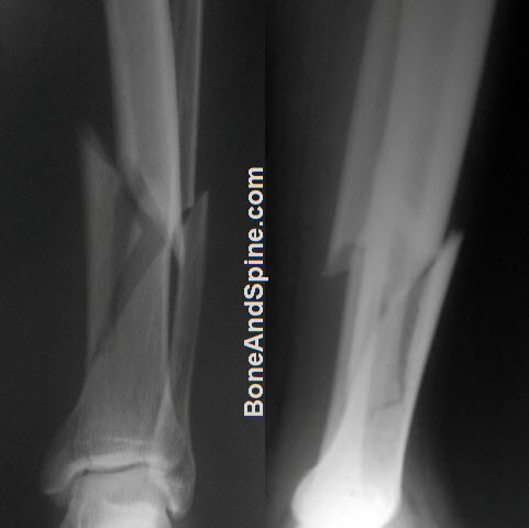 Comminuted Fracture of Lower End Tibia With Fracture of Fibula