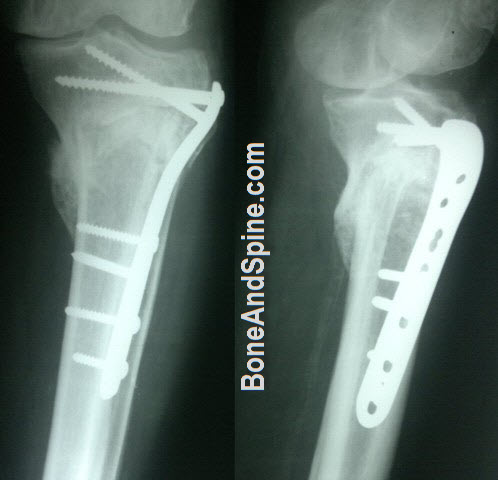 United Fracture Upper Tibia With Upper Tibial Plate In Situ