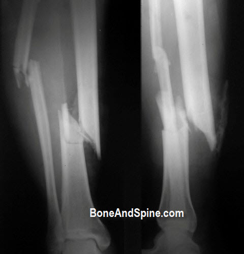 Open Fracture Tibia and Fibula