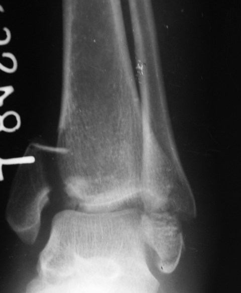 Bimalleolar Fracture Ankle