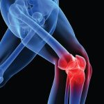 Arthritis Knee Pain – Exercise Plus Diet Are Better