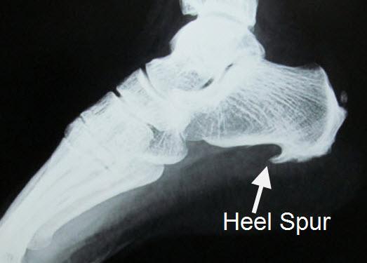 How to fix bone spurs in heel