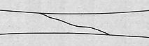 oblique fracture illustration