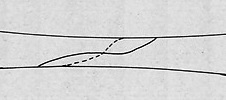 an illustration of spiral fracture