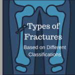 Different types of fracture