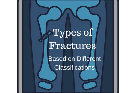 Types of Fractures Based on Different Classifications | Bone