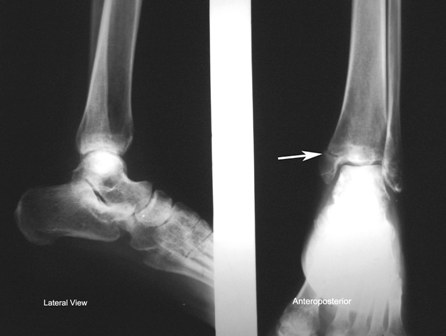 Xray Ankle showing fracture of medial malleolus