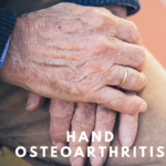 hand osteoarthritis