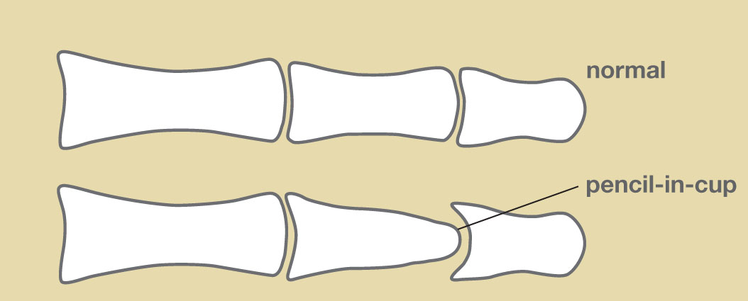 Anatomy of index finger