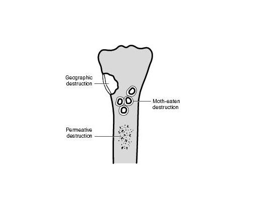 Different Types of Bone Destruction