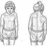Sprengel Deformity