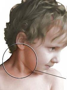 Congenital muscular torticollis.jpg
