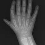 Xray of triphalangeal thumb with polydactyly. Actual thumb is second from left side and there are total of six digits
