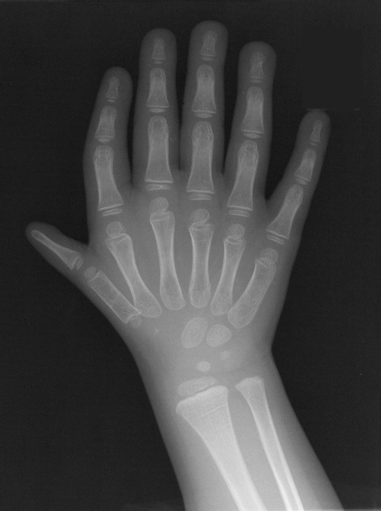 Triphalangeal Thumb | Bone and Spine