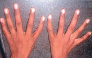 triphalangeal thumb photo