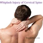 whiplash injury of cervical spine