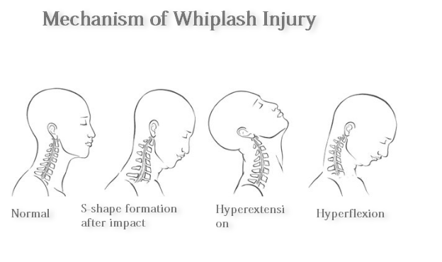 Mechanism of Whiplash Injury