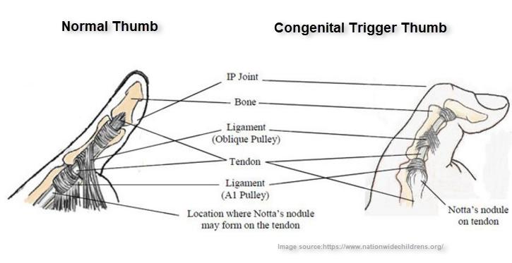 Normal and congenital trigger thumb