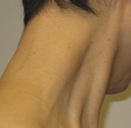 cervical myofascial pain