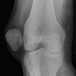 Xray of Dislocation of Patella