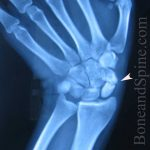 Fracture of scaphoid