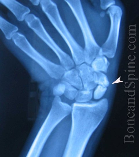 The xray when he came to us shows an ununited fracture of the scaphoid-boneandspine.com