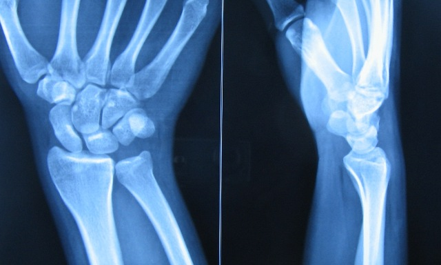 Radiographs of normal wrist