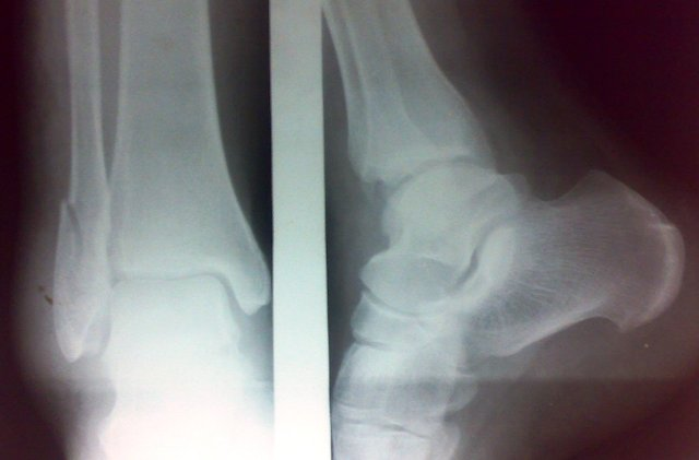 Fracture of Lateral Malleolus. Anteroposterior and lateral views.