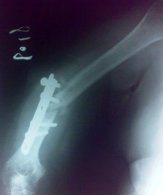 Fracture of lower third of shaf of humerus with failed implant. The plate is off  and screws have come out of the bone