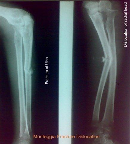 Monteggia fracture