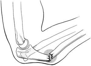 Monteggia fracture type II