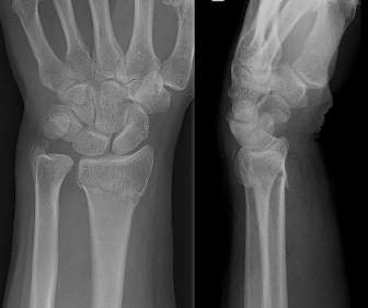 Xray of a Colles' fracture
