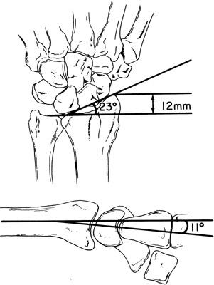 distal radial lenght, ulnar variance and other values