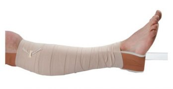 Complications of Skin Traction may occur