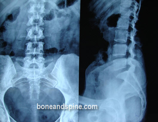 Anteroposterior and Lateral Views of Lumbar Spine