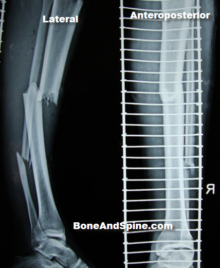 Xray Pictures of Fractured Tibia Fibula | Bone and Spine